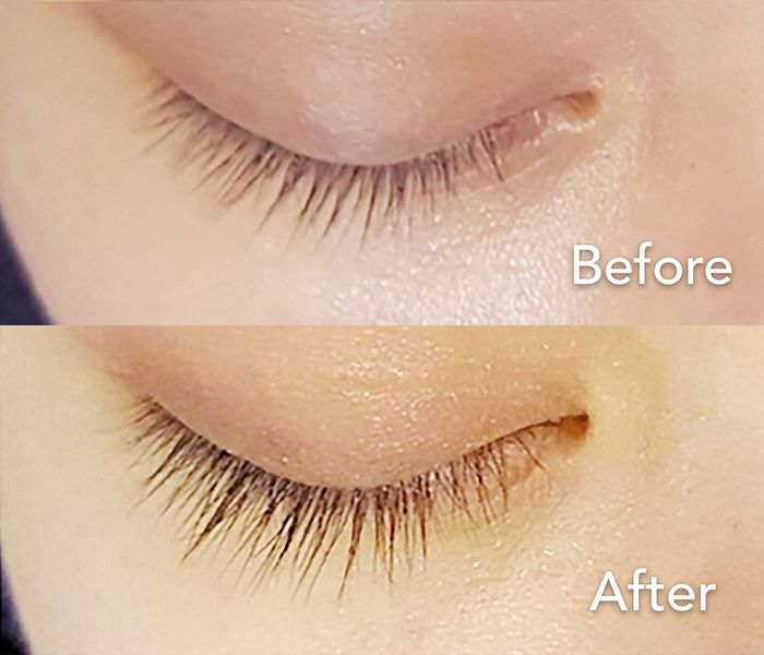 Nano Lash Regrowth Procedure