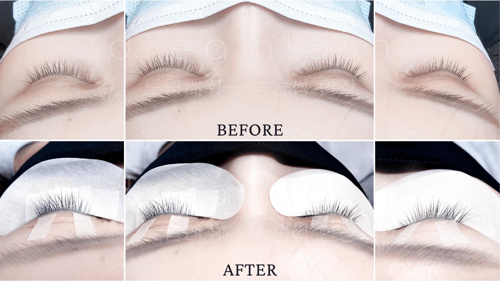 Nano Eyelash Regrowth Before & After