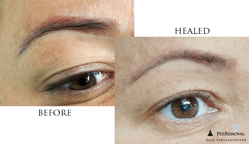 Chemical Brow Removal Before and After