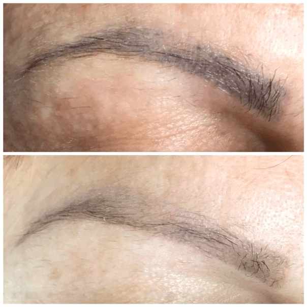 Chemical Brow Removal