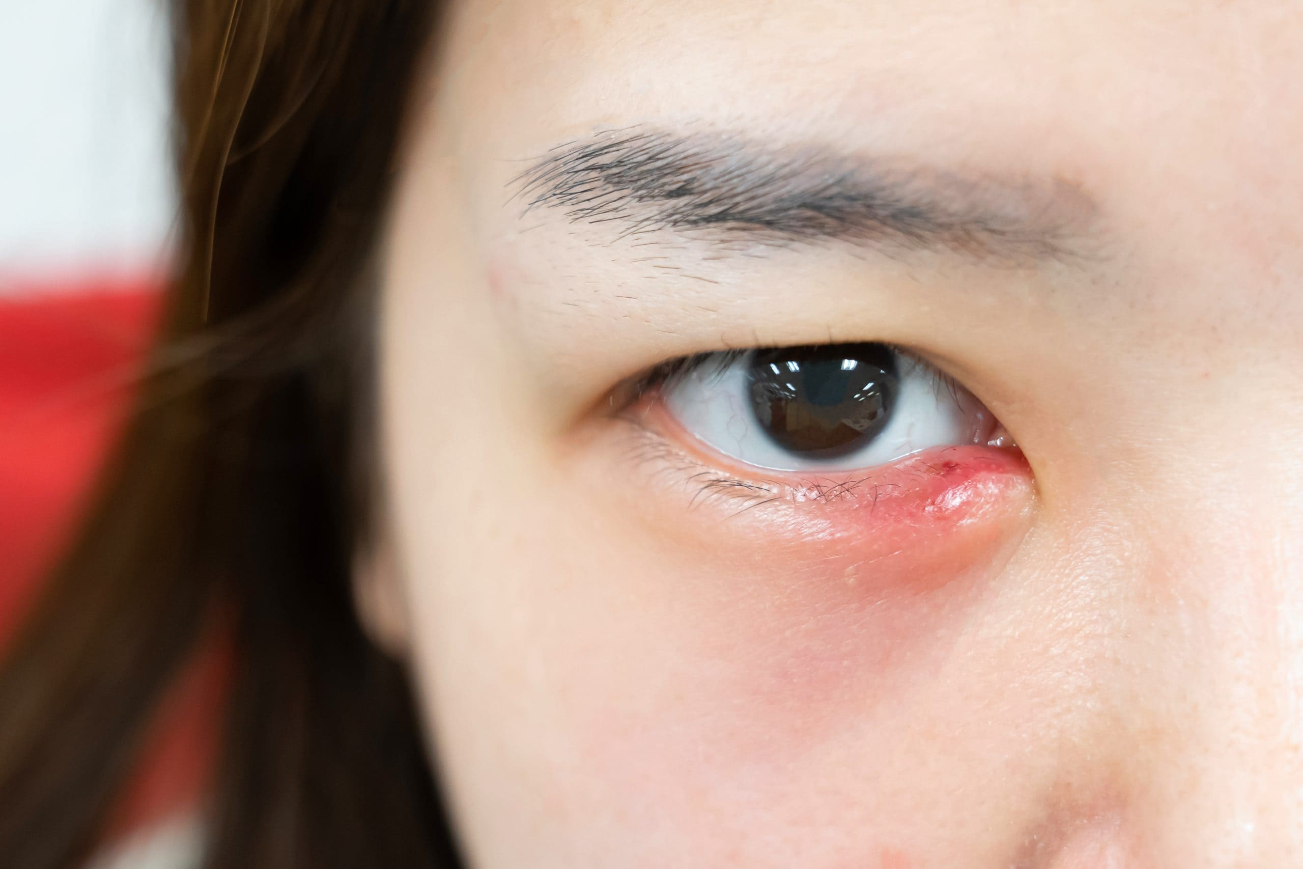 Infected eyes due to at home lash lift
